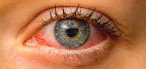 امراض العين النادرة الحدوث
