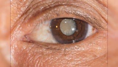 الماء الابيض في العين